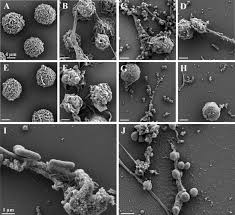 the pig as a model for investigating the role of neutrophil serine