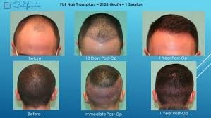 neograft recovery timeline follicular unit extraction fue hair transplant in walnut creek