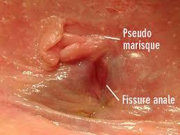 bain de si e pour fissure anale hémorroïdes et fissures remèdes naturels 100 efficaces pour