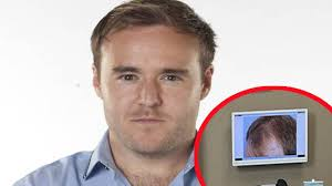 coronation street hair transplants does coronation street s alan halsall publish pics before and