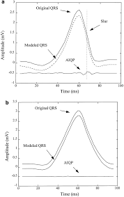 analysis of abnormal intra qrs potentials circulation