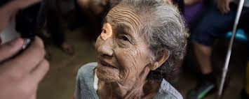 Can Cataracts Lead To Blindness Saving Sight In The Amazonas