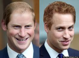 antony cottons hair transplant prince william and prince harry swap hair styles pictures