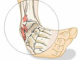 High Ankle Sprain Anatomy Sprain Your Ankle To Jump Higher Jump Science