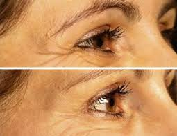 Blu U Before And After Best 25 Botox Results Ideas On Pinterest Botox Prices Botox