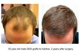 hair transplant america top ten 2500 3000 graft hair transplants by dr jones dr robert