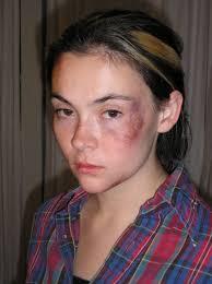 bruise makeup by baronvonfogel deviantart com on deviantart