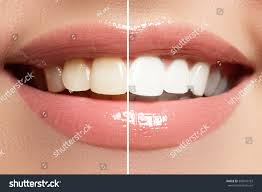perfect smile before after bleaching dental stock photo 308947793