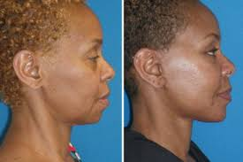 hairstyles that cover face lift scars mini facelift and chin implant midlothian va cosmetic facial surgery