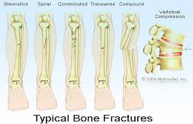 types of bone fractures healing tailbone collarbone u0026 others