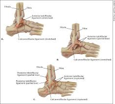 Anterior Distal Tibiofibular Ligament Management Of Ankle Sprains American Family Physician
