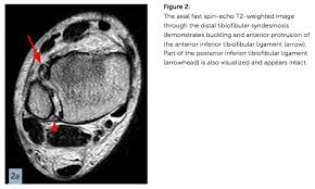 Ankle Ligament Tear Mri Paine Podcast And Medical Blog No Paine U2026 U2026no Gain Page 16