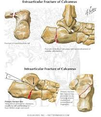 Os Calcaneus 392 Best Bones Images On Pinterest Bones Radiology And Medical