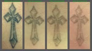 tattoo removal treatment 1 to 4 tattoo love