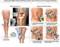 Right Knee Anatomy Displaced Right Knee Patellar Knee Cap Fracture And Surgical