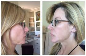 best hairstyles for sagging jowls botox for jowls ladies need i say more beauty black book