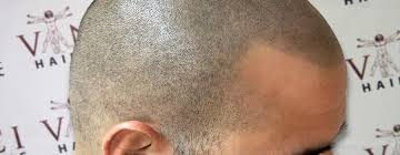 pics of scalp micropigmentation on people with long hair your scalp micropigmentation shaving routine vinci scalp