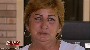 eyeliner tattoo violent eyes brisbane woman scarred for life by permanent makeup after asking for