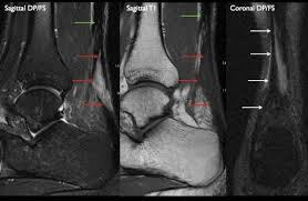 Ankle Ligament Tear Mri Centre D U0027imagerie Ostéo Articulaire Clinique Du Sport De Bordeaux
