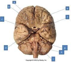 Brain Stem Anatomy Print Neuro Lab Block I Brain Stem Gross Anatomy Flashcards