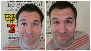 before and after thinning mens haircut receding hairline before and after haircut youtube