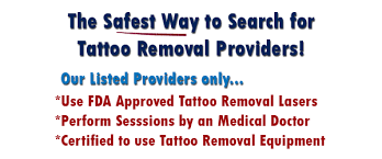 home tattoo removal 5 tips for success