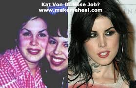 does kat von d u0027s body art include plastic surgery makemeheal