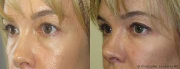 tear trough fillers for lower eyelid bags beverly