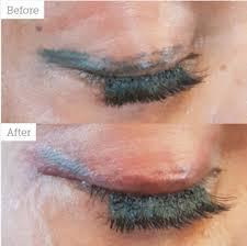 eyeliner tattoo pain level permanent makeup removal aesthetics
