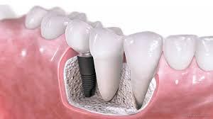 dentist westminster cosmetic family dental clinic bertagnolli