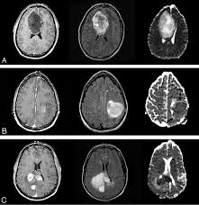 Advanced Anatomy And Physiology Update On Brain Tumor Imaging From Anatomy To Physiology