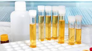 leucociti a tappeto leucociti nelle urine quali sono le cause saperesalute it