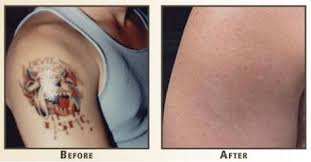 pin by sean jones on get rid tattoo natural tattoo removal