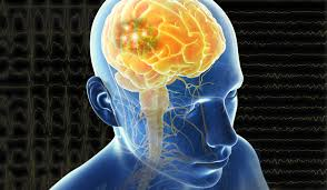 Brain Mapping Addressing Epilepsy With Noninvasive Brain Mapping Draper
