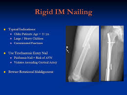 pediatric femoral shaft fractures ppt video online download