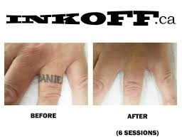 black finger tattoo removal before after 6 sessions inkoff