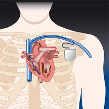 pacemaker chambre pacemaker rythmo