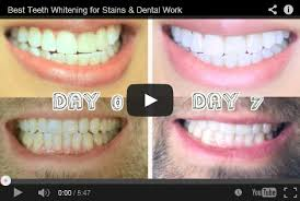 brightwhite smile teeth whitening light teeth whitening reviews best as of may 2018 smile brilliant