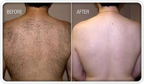 how much does laser hair removal cost on back how much does full body laser hair removal cost by
