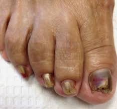 nail fungus why are my toenails thick and yellow