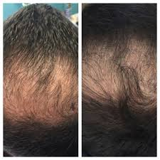 Stem Cells Hair Loss Hair Loss Restoration U2014 Prolotherapy Scottsdale Az U2022 Source Of