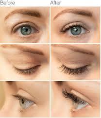 spectaculash 100 natural eyelash growth serum u2013 dermaworks