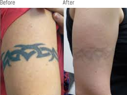 laser tattoo removal melbourne full fade no scarring skin clinic