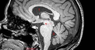 Sagittal Brain Mri Anatomy Oculomotor Nerve