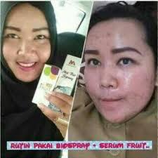 Ecer Collagen Spray Msi amankah memakai serum fruit msi untuk kulit wajah agen biospray