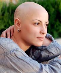 how to care for chemo curls hair loss and hair loss women