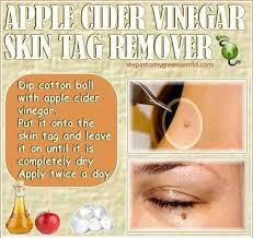 how to use vinegar to get rid of hair dye best 25 remove skin tags naturally ideas on pinterest skin tags