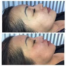 2015 nissan juke goose creek complexion by v in salt lake city acne treatment eyelash