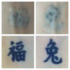 tattoo removal frequently asked questions tattoo removal sydney frequently asked questions