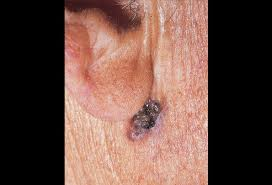 cancer of the ear cartilage basal cell carcinoma ear picture image on medicinenet